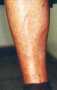 Partial Leg Prosthesis Post
