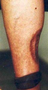 Partial Leg Prosthesis Pre